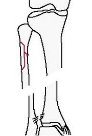 Надсиндесмозный перелом голени с проксимальным повреждением малоберцовой кости