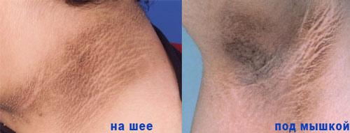 Черный акантоз появляется на складках кожных покровов с мягкими тканями.