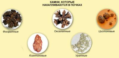 Зачем определять виды почечных камней