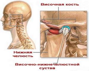 Артрит челюстно лицевого сустава: причины