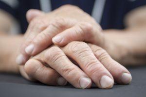 Этиология и патогенез ревматоидного артрита