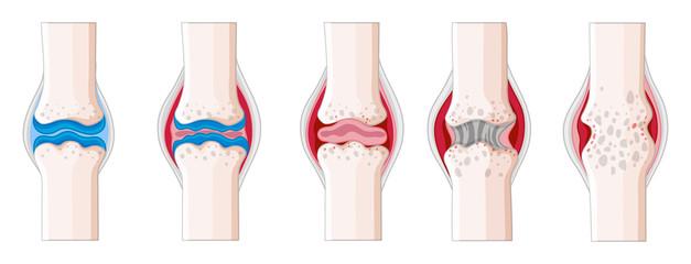 диагностика ревматоидного артрита на ранних стадиях