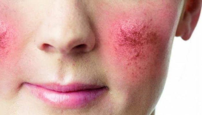 Краснеют щеки у взрослого: причины