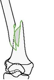Простой спиральный перелом бедра