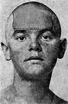 Зона обезболивания при субфасциальном введения на голове анестетика