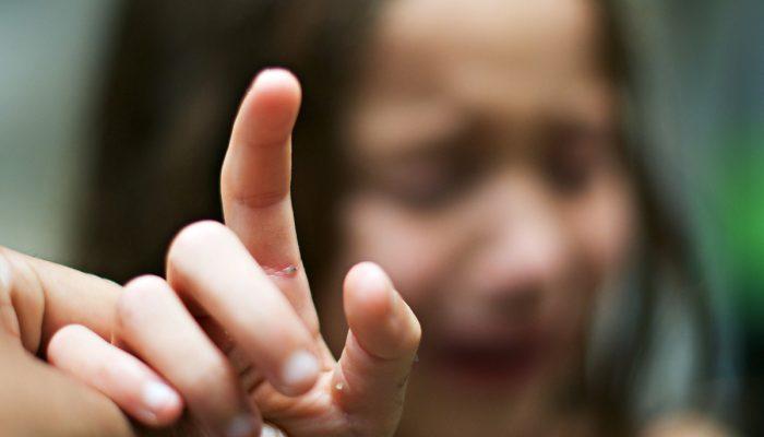 Лучшие советы, как вытащить занозу из-под ногтя