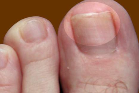 Начальная стадия грибка ногтей на ногах: фото