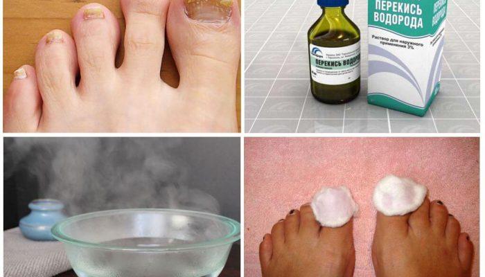 Лучшие способы лечения грибка ногтей перекисью водорода