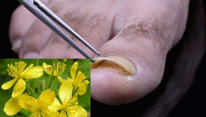 Как применять масло чистотела от грибка ногтей? Лучшие рецепты и способы использования