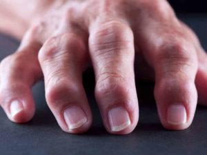 Ревматоидный артрит код по мкб 10: клинические проявления