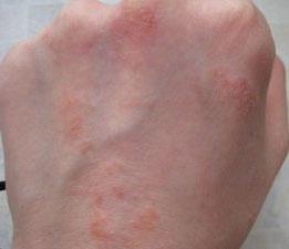 Сыпь на руках при дерматите