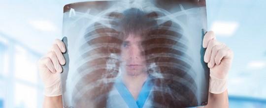 Волчаночный плеврит на рентгенограмме