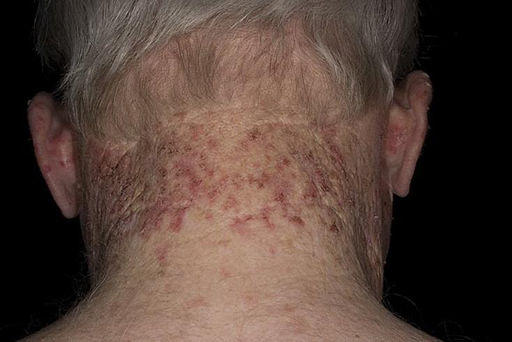 Симптомы кератоза
