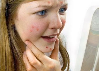 Как избавиться от красных пятен на лице после прыщей