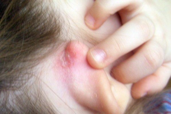 Сыпь на ушах у ребенка и взрослого: причины