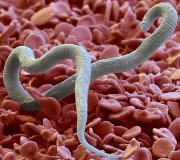 Дирофиляриоз у человека: симптомы, фото и лечение