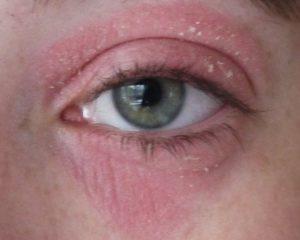 Кандидоз ушей, глаз, носа, губ (фото)