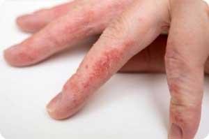 Сухость кожи на руках