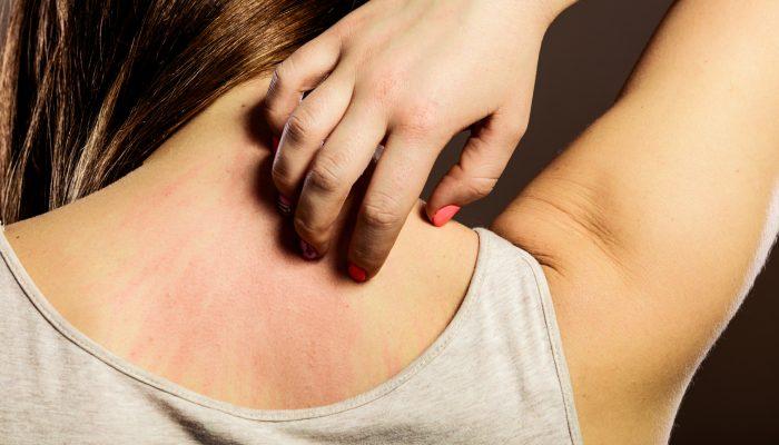 Психосоматика аллергии у взрослых и у детей