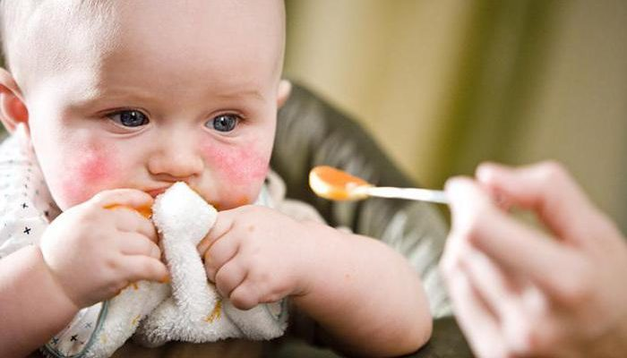 Диатез у детей: аллергический, нейро-артритический и шизотипический