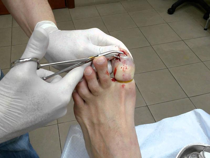 Удаление ногтя, пораженного грибком, хирургическим методом