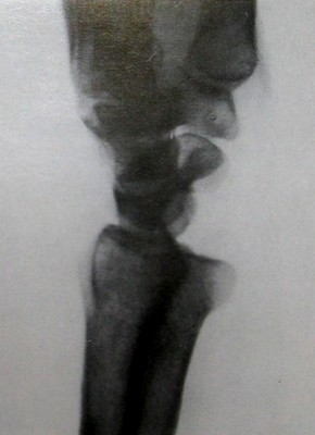 Ладонный вывих локтевой кости в запястье на боковом рентгеновском снимке