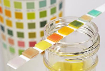 Как определить концентрацию белка в моче?