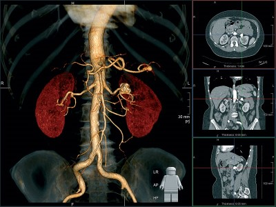 Что покажет томография?
