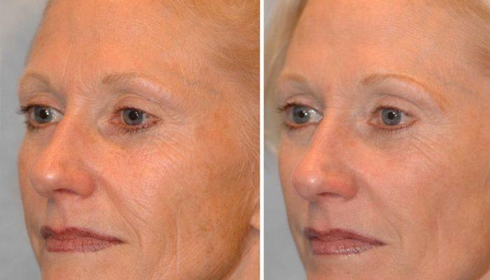 Микротоковые процедуры для лица