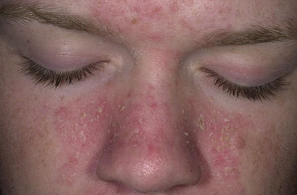 Жирная себорея кожи: фото