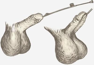 Бужирование уретры у мужчин и женщин: подготовка и особенности процедуры