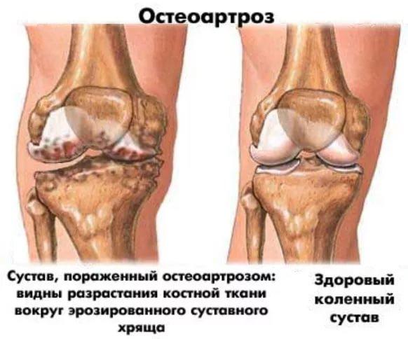 пораженное колено