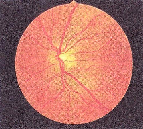 Базальная (непролиферативная) диабетическая ретинопатия