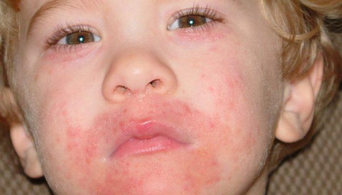 Что такое периоральный дерматит и где его локализация? А также причины и лучшие средства для лечения