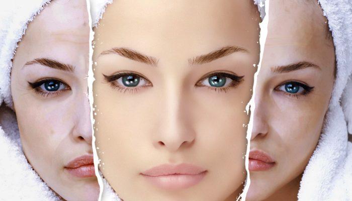 Что такое энзимный пилинг лица?