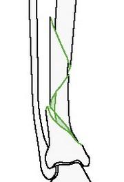 Сложный спиральный перелом голени