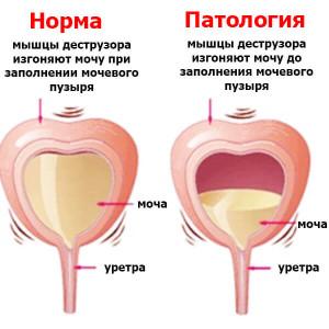 Расстройство мочевого пузыря