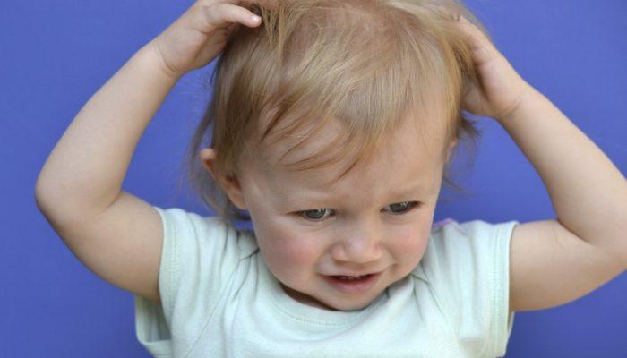 Признаки вшей на голове у взрослых и у детей