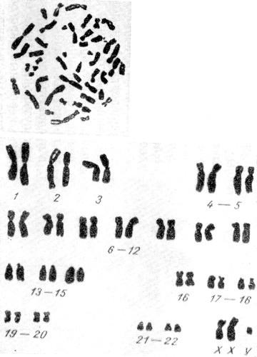 Кариотип 44A + XXY при синдроме Клайнфельтера