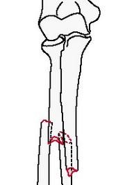 Простой перелом обеих костей предплечья