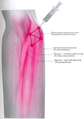 Эпикондилит локтевого сустава: точки для лечения