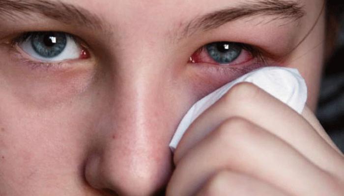Что означает зуд, покраснение и жжение в глазах? Причины и лечение неприятных симптома