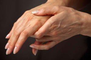 Артрит пальцев рук: признаки заболевания