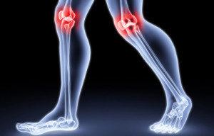 Ревматоидный артрит коленного сустава: симптомы