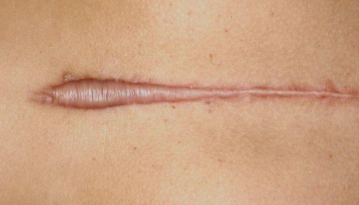 Возвращаем красоту кожи: лучшие советы, как избавиться от шрамов после операции и на запястьях