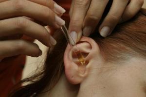 Как лечить внутренний прыщ на мочке уха, кисту или атеромы