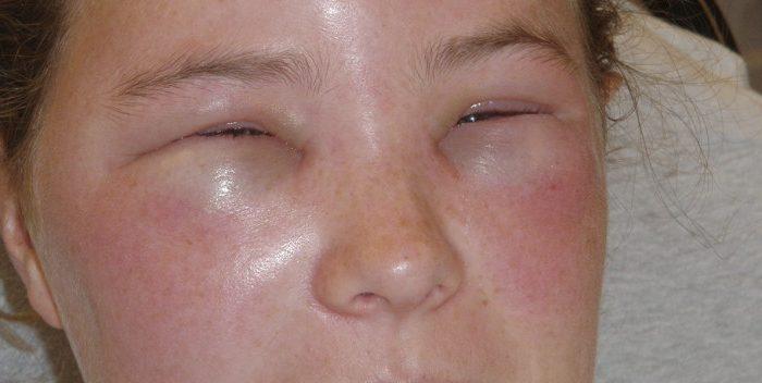 Может ли быть аллергия на пиво? Симптомы и лечение реакции