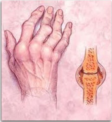 Методы лечения ревматоидного артрита народными средствами