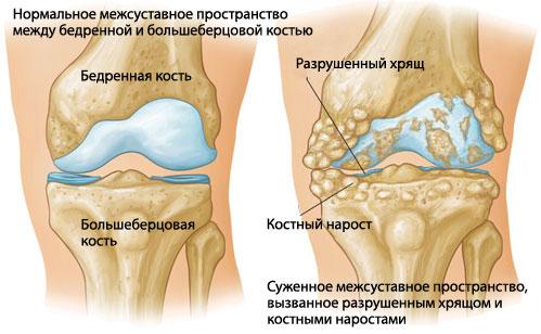 Артрит коленного сустава: этапы лечения