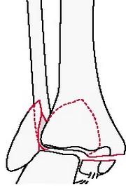 Чрезсиндесмозный перелом малоберцовой кости с повреждением большеберцовой кости или дельтовидной связки и переломом заднего края